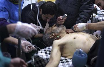 Bombardeos en regiones sirias provocan 69 personas muertas