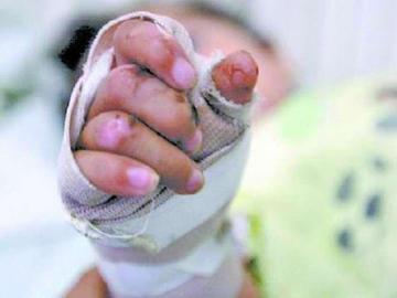 Defensoría continúa con el proceso de niño quemado