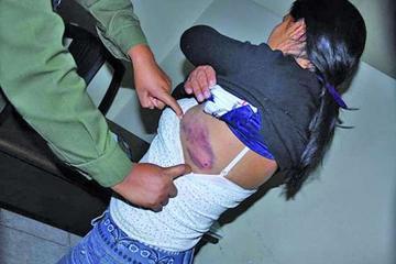 Los casos de agresiones  físicas se disparan