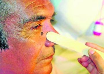 Potosí está entre las zonas con alto riesgo para cáncer de piel