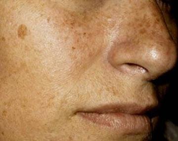 Revisan las manchas de piel gratis en  el Bracamonte