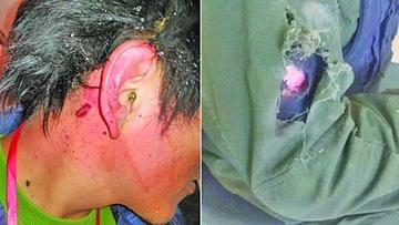 La Paz: camarógrafo y policía son heridos en una protesta de vecinos