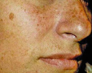 Hoy y mañana atienden consultas gratis para prevenir el cáncer en la piel