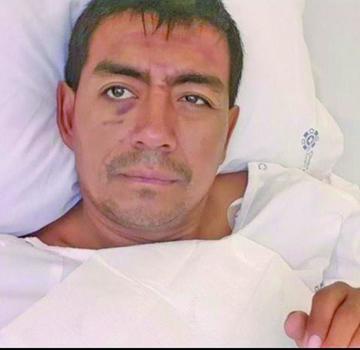 Fabricio Fuentes sigue en terapia intensiva