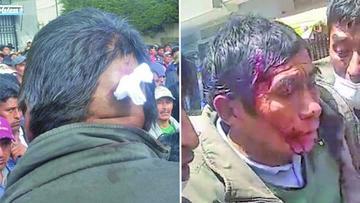Los cocaleros de Yungas declaran vigilia tras represión con heridos