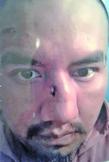 Abogado denuncia que Pari fue torturado en la cárcel de Chonchocoro