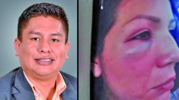 Expareja de Cabrera desiste de su denuncia de violencia