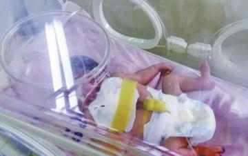 Fallece por un paro cardíaco la bebé que nació con el corazón expuesto