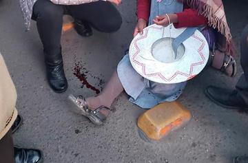 Chofer de microbús atropelló a una transeúnte y fracturó su pie