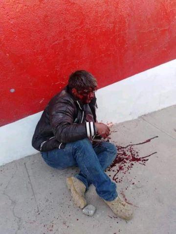 Avasalladores golpearon brutalmente a un ciudadano