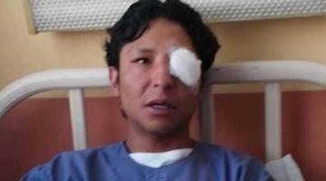 Universitario pierde un ojo en represión policial durante protestas