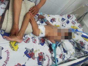 Internan en terapia pediátrica a niño con desnutrición aguda