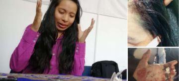 """Piden que se investigue brutal agresión a una """"pitita"""" en El Alto"""