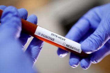 Confirman nuevo caso positivo en Chuquisaca y laboratorio sigue sin dar resultados