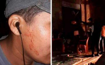 Aumentan las agresiones contra periodistas en el país durante la pandemia