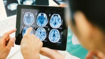 La COVID-19 grave puede causar complicaciones cerebrales, según un estudio