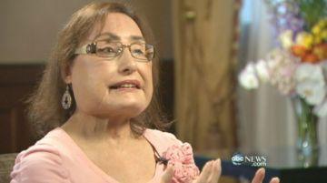 La primera receptora de trasplante facial en EE.UU. muere tras 12 años