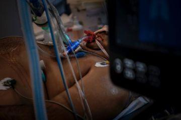 Los hospitales en Portugal libran la batalla contra la segunda ola de covid-19