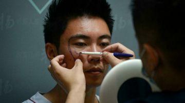 Los hombres también recurren a la cirugía estética en China