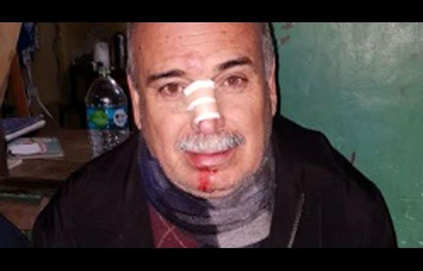 Lozada resulta herido en Palmasola