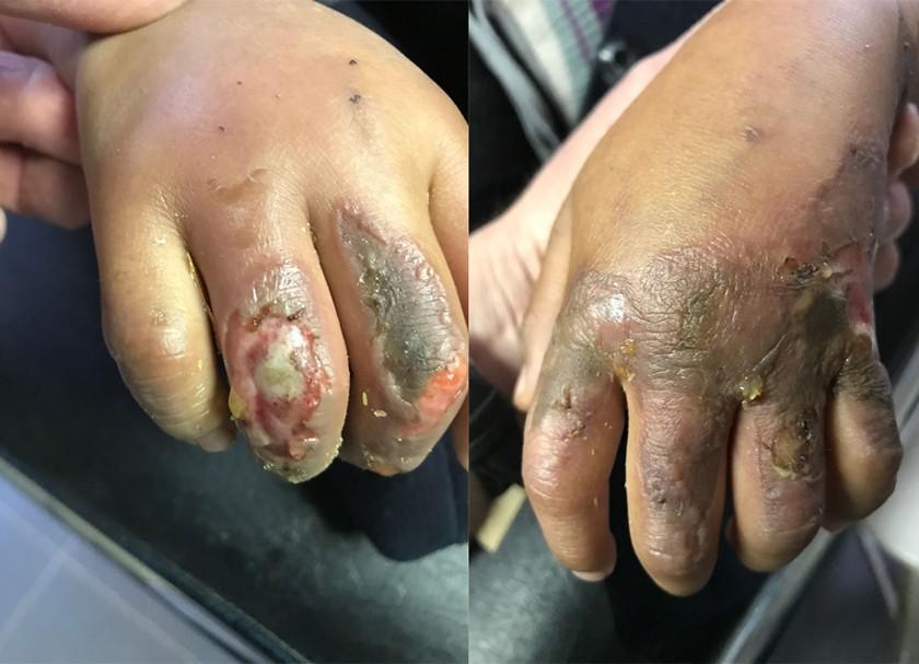 Madre incendia las manos de su hija de siete años