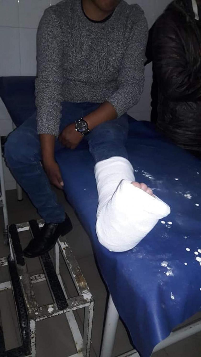 Motociclista se estrella contra un vehículo y hay un herido