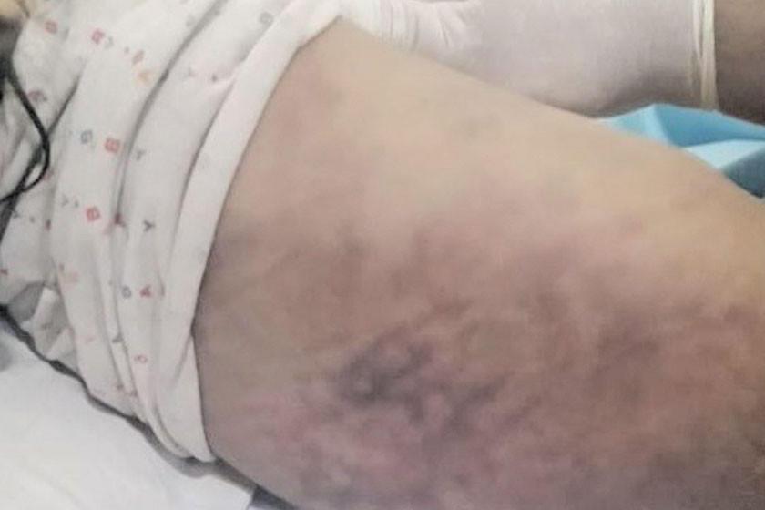 Una niña es castigada con el palo de una escoba