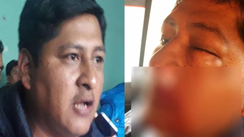 Denuncian que representante de Adepcoca en Los Yungas fue golpeado