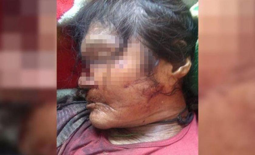 Envían a la cárcel de San Pedro al anciano acusado de feminicidio