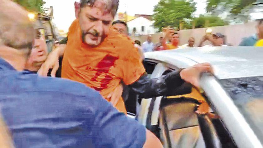 Brasil: Senador es herido de bala en una protesta