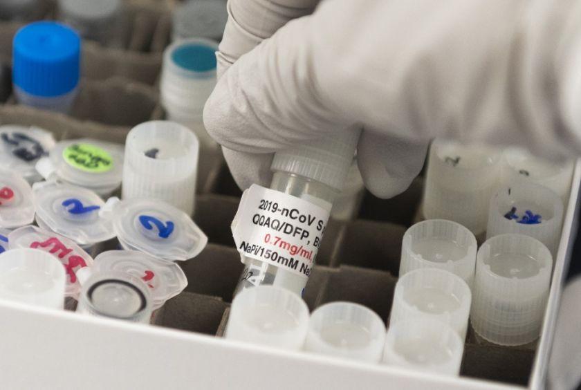Vacuna contra covid-19 de Moderna no estará lista antes del 25 noviembre