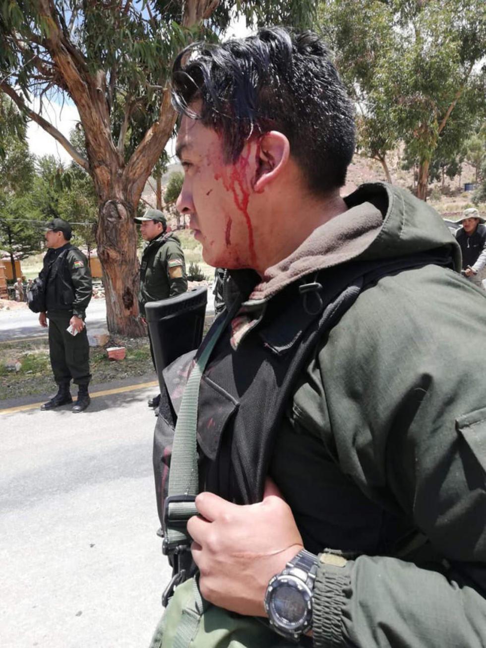 Uno de los cinco policías heridos.