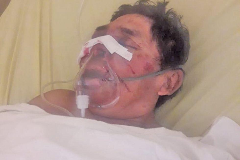 Sale de su coma y identifica a los que lo agredieron y muere