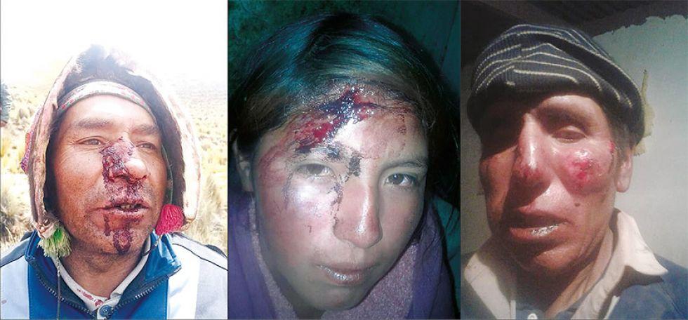 Fotografías de algunos de los heridos por impacto de piedras.