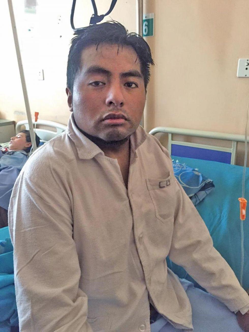 Rafael Moscoso recibió una herida en el pulmón.