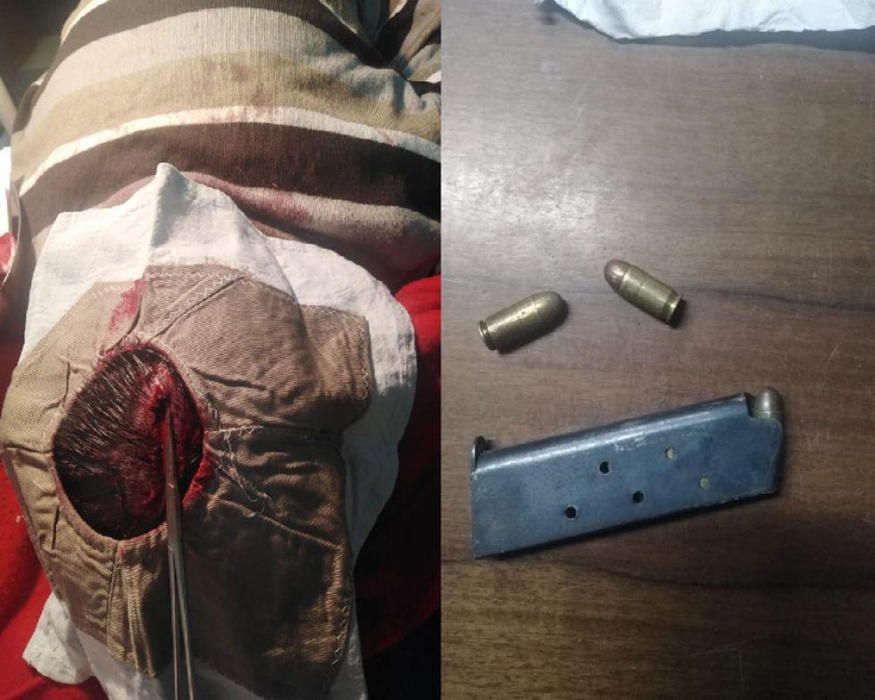 La cabeza del hombre fue agujereado y la cacerina del arma fue incautado.