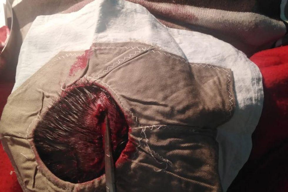 Asalto a mano armada termina con personas heridas en Villazón