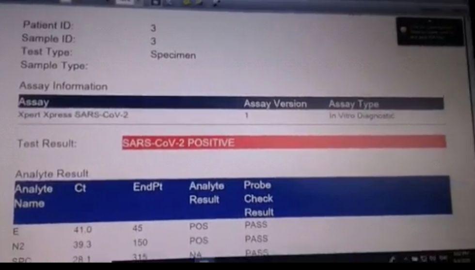 Laboratorio COVID-19 ya procesó las primeras muestras