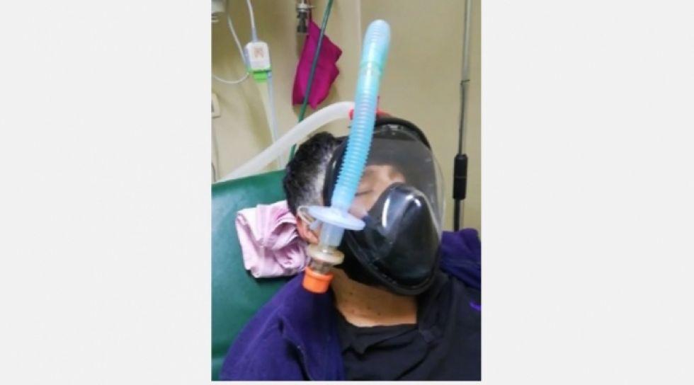 La Paz: médico fabrica un sistema de respiración para salvar la vida de sus pacientes
