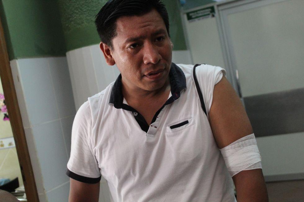 El periodista del diario Zona Norte, Wilber Zabala, aparece con una herida provocada por un proyectil de gas lacrimógeno empleado por la policía para dispersar a manifestantes